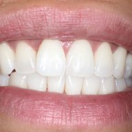 Internal Bleaching: Case #3