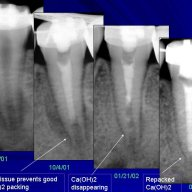 Apexification of Lower Premolar