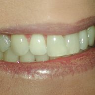 Internal Bleaching: Case #2