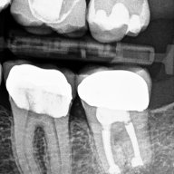 Endodontic Microsurgery: Case #5 – Intentional replantation (not so common procedure)