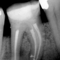 Endodontic Treatment: Case #3 – Patient referred due to pain to biting. The amalgam filling was done many years ago.